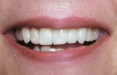 Teeth whitening after photo - Hester Dental